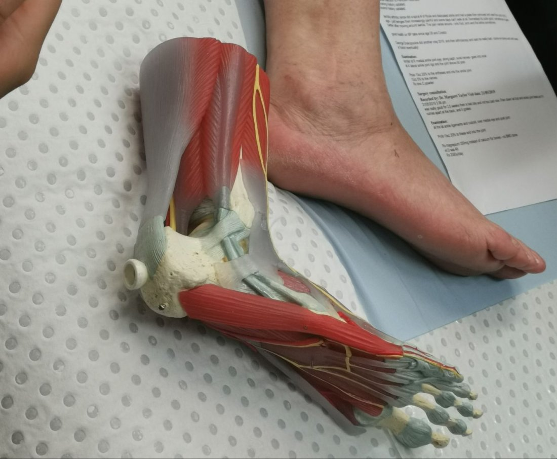 Foot Mobilisation and Dry Needling Workshop for Allied health Professionals | Event in Kingscliff | AllEvents.in